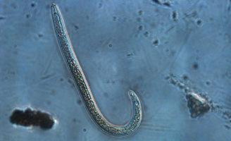 Nematode under microscope