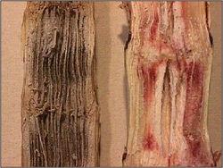 Charcoal Rot  - Grain Sorghum